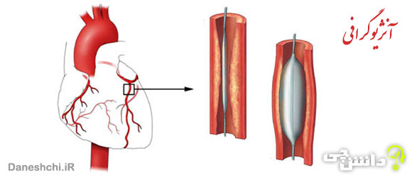 آنژیوگرافی چیست و کاربردهای مختلف آن در پزشکی