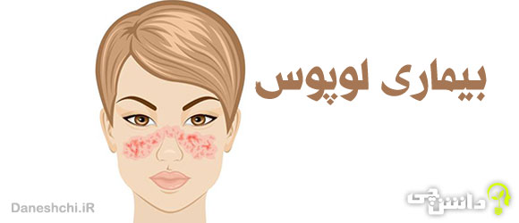 بیماری لوپوس (SEL) چیست