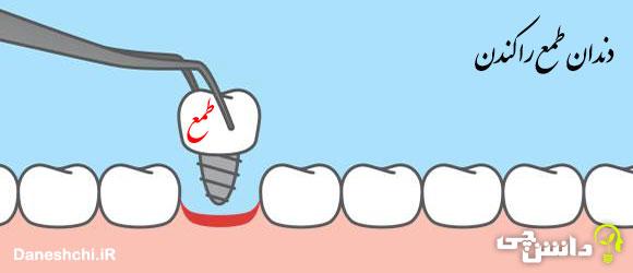 ضرب المثل دندان طمع را کندن